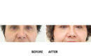 Procedura de mini lifting facial2